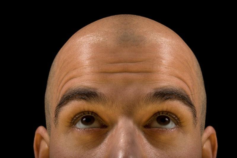 Nguyên nhân không nhỏ của chứng hói đầu là do di truyền