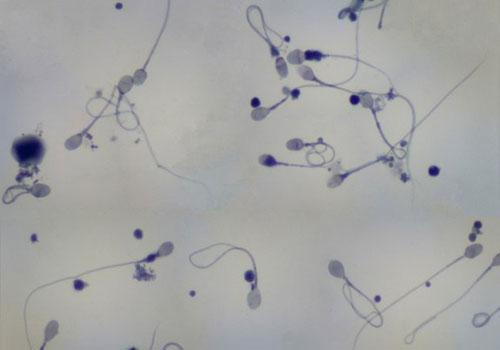 Việc phân tích được bộ gene tinh trùng đóng vai trò quan trọng cho các nghiên cứu sau này