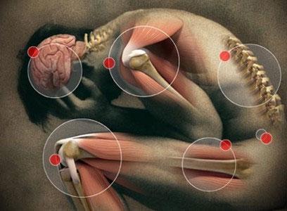 Bệnh cúm nặng có thể làm tăng nguy cơ hội chứng Parkinson
