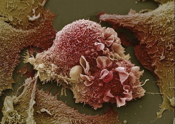 Tế bào ung thư vú có thể kháng lại hệ miễn dịch