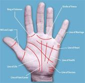 Phẫu thuật bàn tay để thay đổi số phận