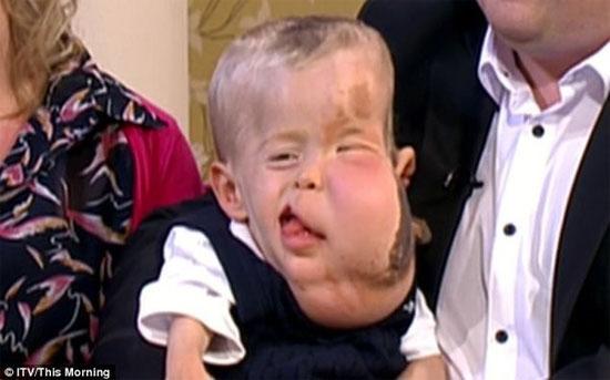 """Các căn bệnh """"triệu người mắc một"""" giống Wanbi Tuấn Anh trên thế giới"""