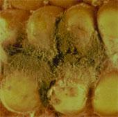 Nấm trong gạo, bắp khiến HIV sinh sôi nhiều hơn