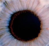 Sử dụng tế bào gốc trong điều trị căn bệnh mù lòa