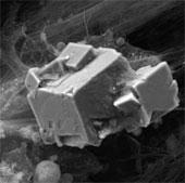 Xương nhân tạo từ tế bào gốc dây rốn