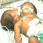 Bé trai 2 đầu chào đời ở Ấn Độ