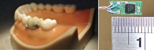 Cảm biến răng giúp bỏ thói quen xấu