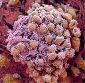 Lần đầu tiên tạo thành công tế bào gốc từ da người