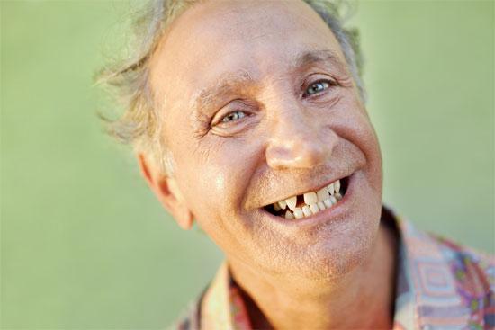 Mất răng gây suy giảm trí nhớ