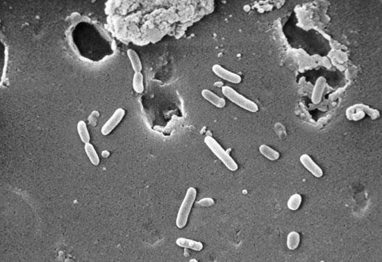 Sử dụng vi khuẩn Pseudomonas làm phân bón