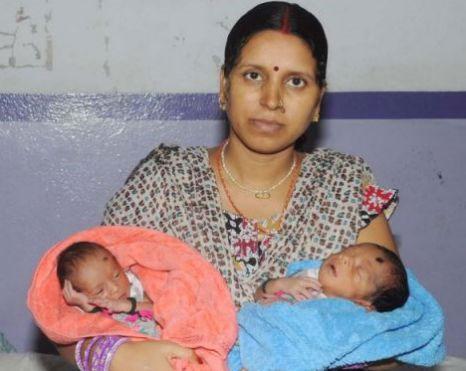 Hai bé sinh đôi từ hai tử cung khác nhau