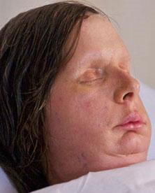 Phẫu thuật thành công khuôn mặt bị biến dạng hoàn toàn