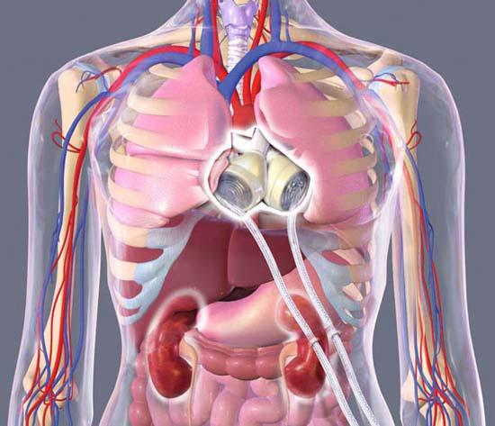 Tạo tim người từ tế bào gốc