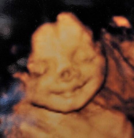 Bé gái sinh ra với mũi hề xiếc