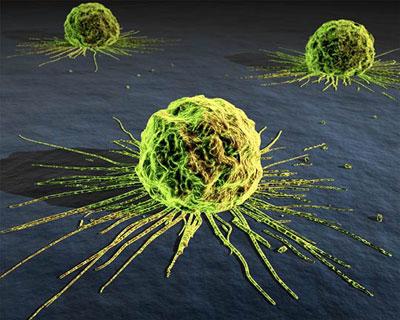 Mô hình toán học mới chống ung thư