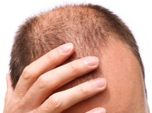 Thuốc trị hói đầu làm tăng nguy cơ trầm cảm