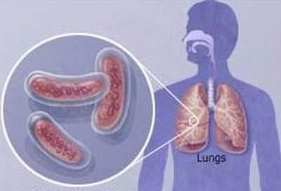 Trung Quốc ra dự thảo mới giúp rà soát bệnh lao