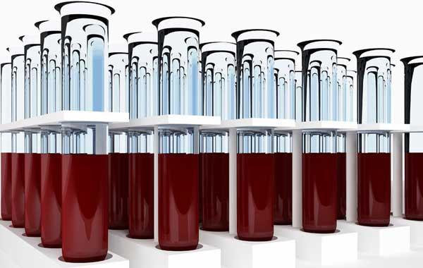 Đoán bệnh qua nhóm máu