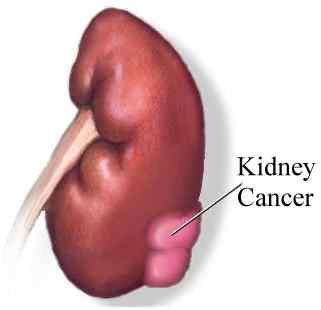 Phát hiện enzyme điều trị ung thư thận hiệu quả