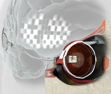 Mắt điện tử: thêm hy vọng sáng mắt cho người mù