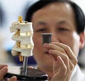 Cấy ghép bộ phận cơ thể bằng công nghệ in 3D