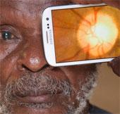 Video: Ứng dụng giúp giảm nguy cơ mù loà