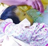 Bé gái 4 tuổi có làn da màu xanh lá cây