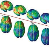Mất 25 năm, não mới phát triển toàn diện
