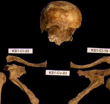 Giải mã bí ẩn về hố chôn tập thể tại Đức