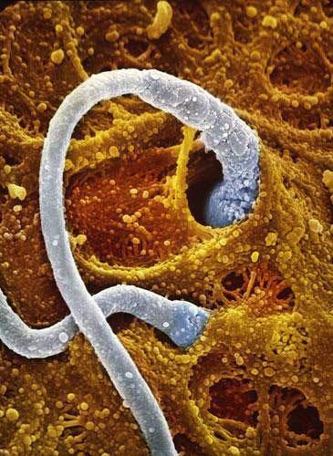 Hai tinh trùng cùng thâm nhập vào bên trong vỏ trứng