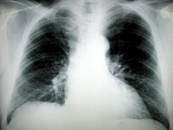 Cuba sắp ra mắt vắcxin có thể điều trị ung thư phổi