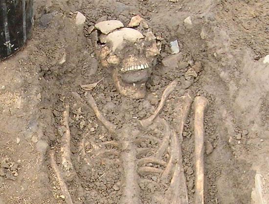 Một trong những bộ xương với hòn đá trong miệng được tìm thấy ở Ireland. (Ảnh: Daily Mail)
