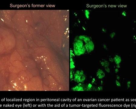 Công nghệ mới trong phẫu thuật ung thư buồng trứng