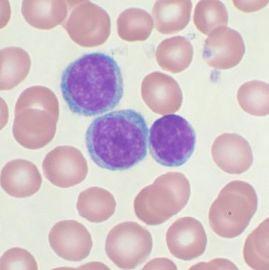 Đột phá trong cấy tế bào gốc từ người đã chết