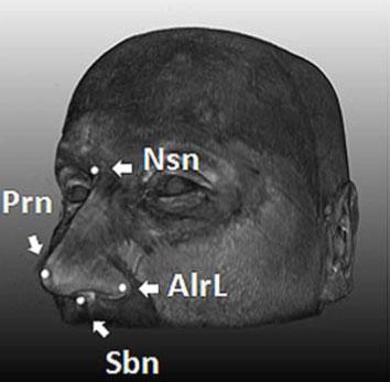 Xác định 5 gene quy định hình dạng khuôn mặt