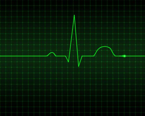 Những người mắc chứng rối loạn nhịp tim có thể lạc quan với cách điều trị mới.