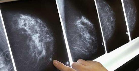 Phim chụp trường hợp bị ung thư vú.