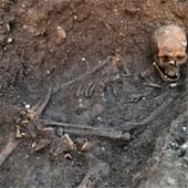 Chẩn bệnh cho vua Richard III