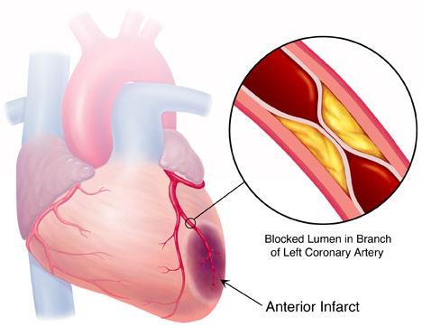 Hy vọng mới cho các bệnh nhân bị nhồi máu cơ tim