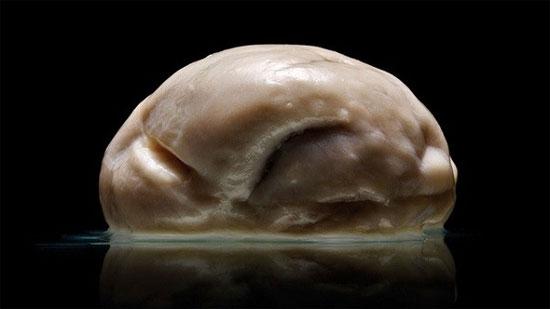 """Hình ảnh bộ não người """"phẳng"""" đến kỳ lạ mới được công bố"""