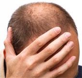 """Đàn ông sợ hói đầu hơn bị """"bất lực"""""""