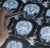 Xóa ký ức đau buồn nhờ gene loại bỏ trí nhớ
