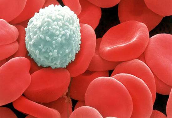 Phát hiện IVIG không tác dụng trong điều trị ung thư máu ở trẻ sơ sinh