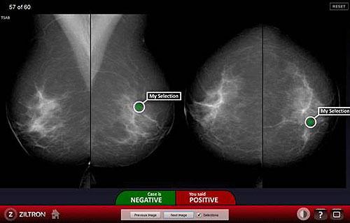 Chương trình tầm soát phát hiện sớm ung thư vú