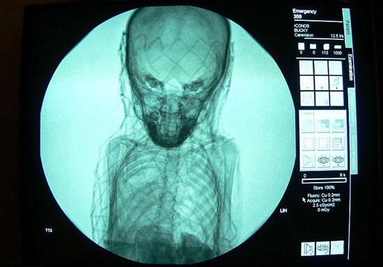 Phim X-quang tiết lộ bí mật chiếc quan tài nghìn năm tuổi