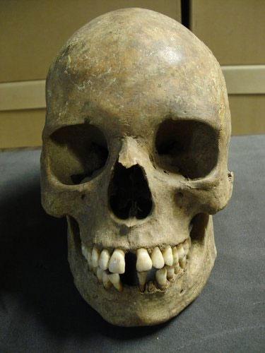 Các nhà khoa học đã thu thập vi khuẩn Yersinia pestis từ răng và xương của nạn nhân trong nạn dịch Cái Chết Đen