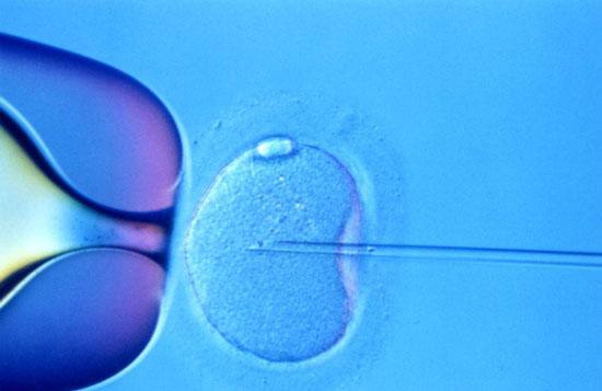 Thụ tinh trong ống nghiệm gây biến chứng thai kỳ