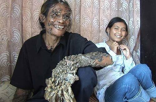 Video: Người cây ở Indonesia