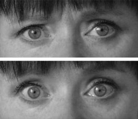 Đôi mắt trong trạng thái bình thường (ảnh trên) và khi bị thôi miên (ảnh dưới). (Ảnh: Viện Hàn lâm Phần Lan)