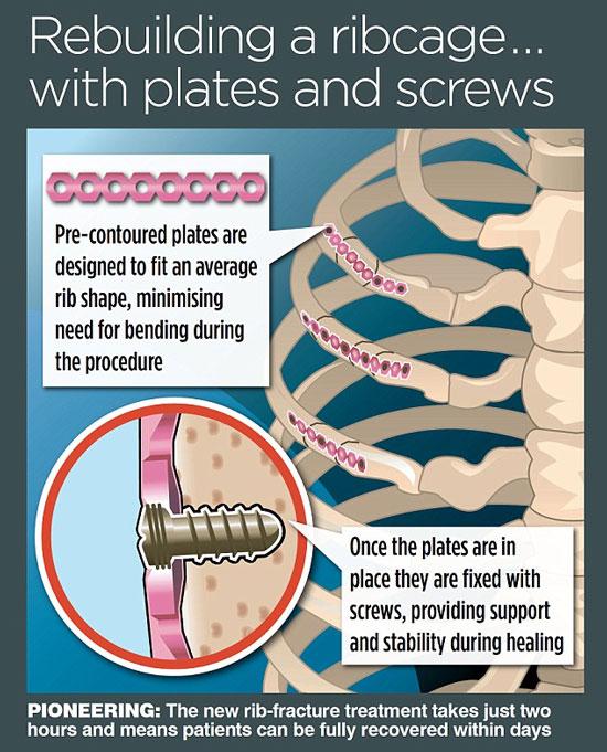 Synthes Rib Matrix – phương pháp phẫu thuật mới giúp xương gãy mau hồi phục